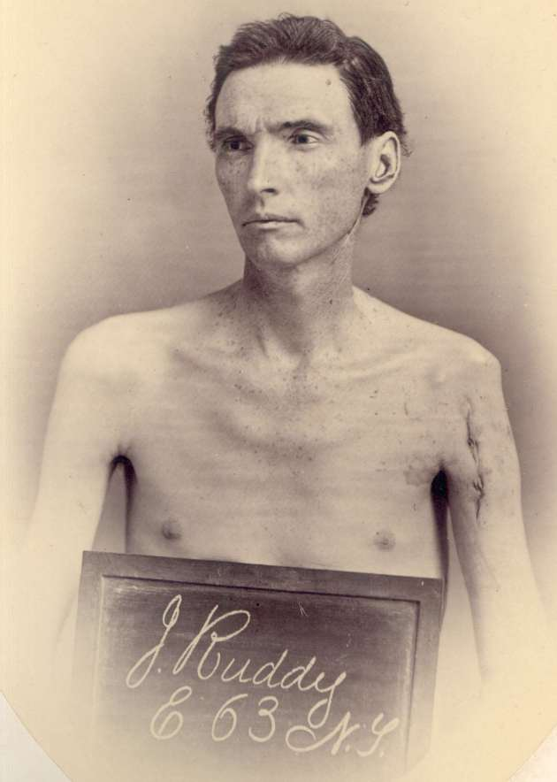 Photograph of John Ruddy taken following his operation at Harewood Hospital in 1865 (National Museum of Health and Medicine)