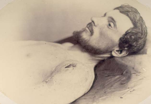 Photograph of John Ruddy taken at Harewood Hospital following his wounding at the South Side Railroad on 2nd April 1865 (National Museum of Health and Medicine)