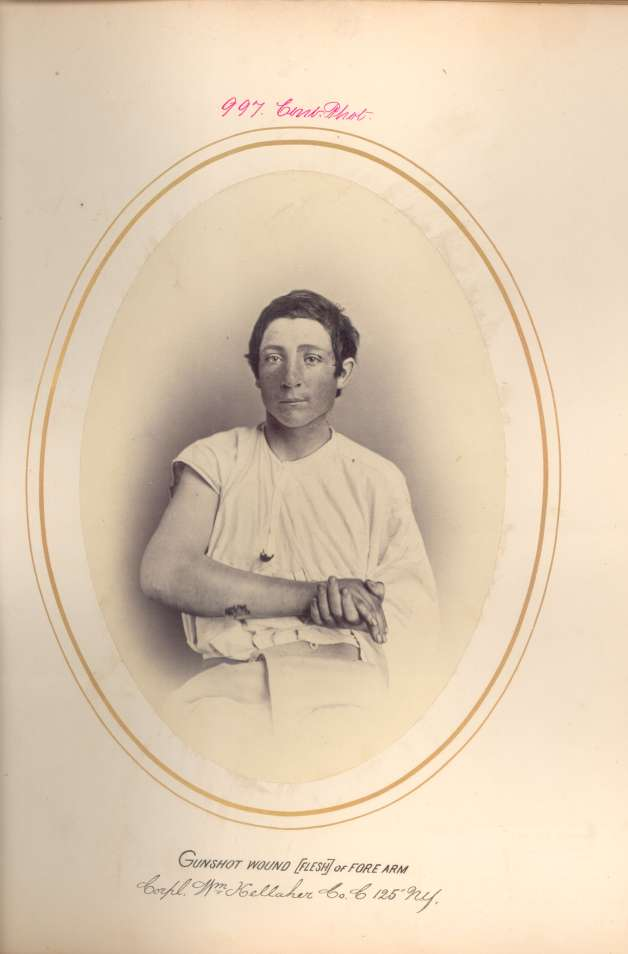 Corporal William Kelleher displays his wound (National Museum of Health & Medicine)