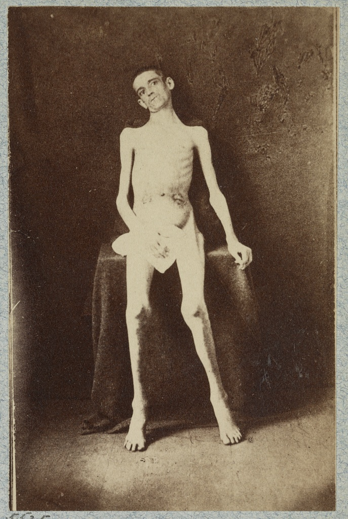 One of the famed photos of emaciated Union prisoners, showing the hardships many of them faced. Although often associated with Andersonville, the majority of these soldiers had been incarcerated at Belle Isle. Research by the NPS has identified this as William Smith of the 8th Kenctucky, who had been captured at Chickamauga (Library of Congress)