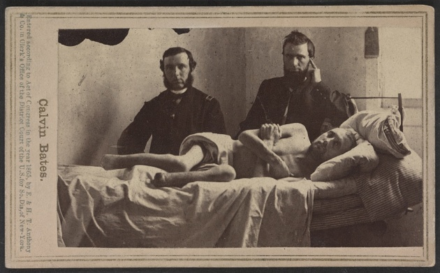 Calvin Bates served in Company E of the 20th Maine. Like Tommy he was captured at The Wilderness and ended up in Andersonville. He survived, but his ordeal there led ultimately to the amputation of both of his feet (Library of Congress)