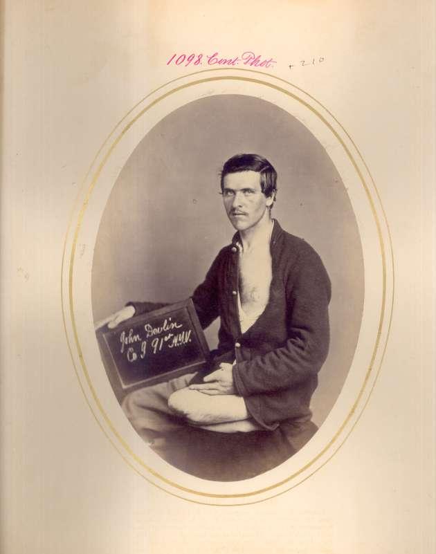 John Devlin (National Museum of Health & Medicine CP1098)