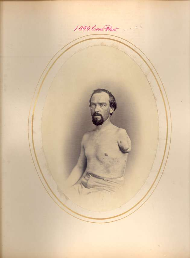 Martin Burke (National Museum of Health & Medicine CP1099)