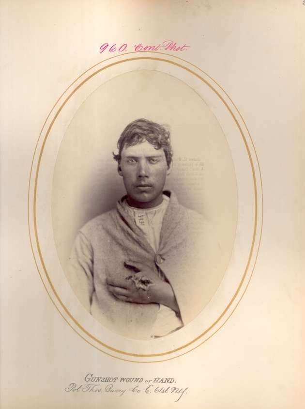 Thomas Barry (National Museum of Health & Medicine CP 0960)
